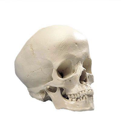 Crâne hydrocéphale A29/2