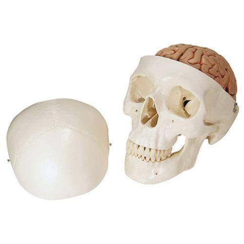 Crâne avec cerveau, en 8 parties A20/9
