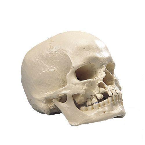 Crâne microcéphale A29/1