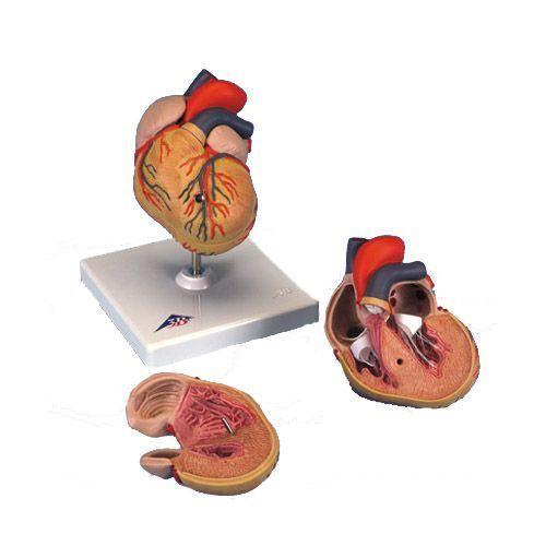 Cœur avec hypertrophie du ventricule gauche (HVG) G04