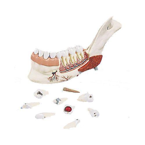 Hémi-mandibule, avec 8 dents cariées, en 19 parties VE290
