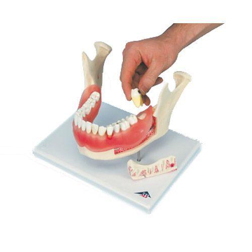 Affection dentaire, agrandissement : 2 fois, 21 pièces D26