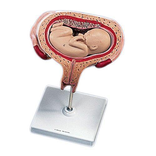 Fœtus à 5 mois, décubitus dorsal L10/6