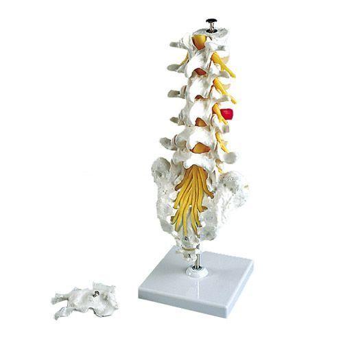 Colonne vertébrale lombaire avec prolapsus dorso-latéral A76/5