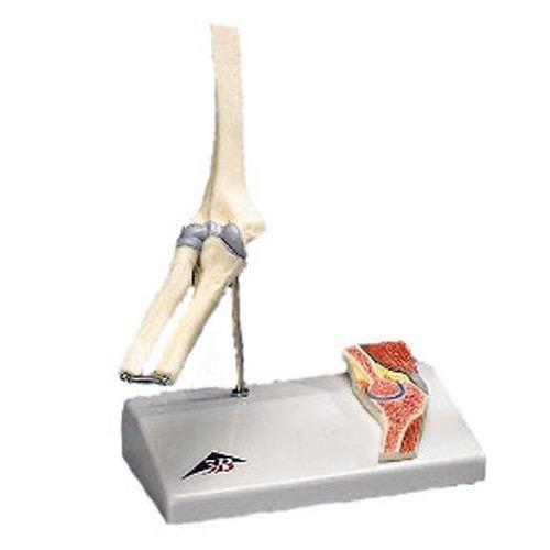 Articulation miniature du coude avec coupe transversale A87/1
