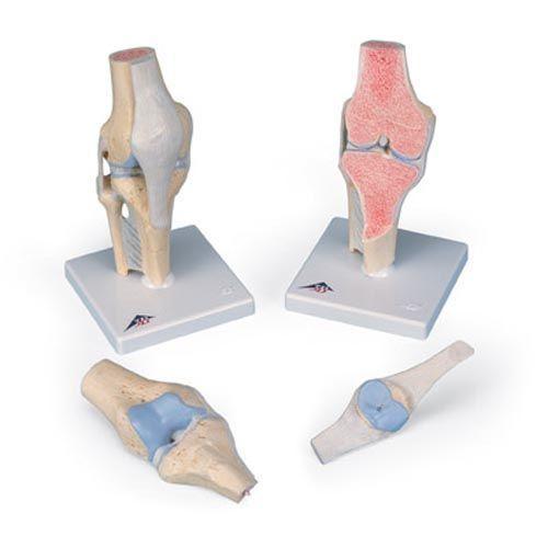 Modèle de coupe de l'articulation du genou, en 3 parties A89