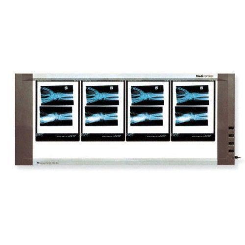 Négatoscope Extra-plat 4 plages 90W