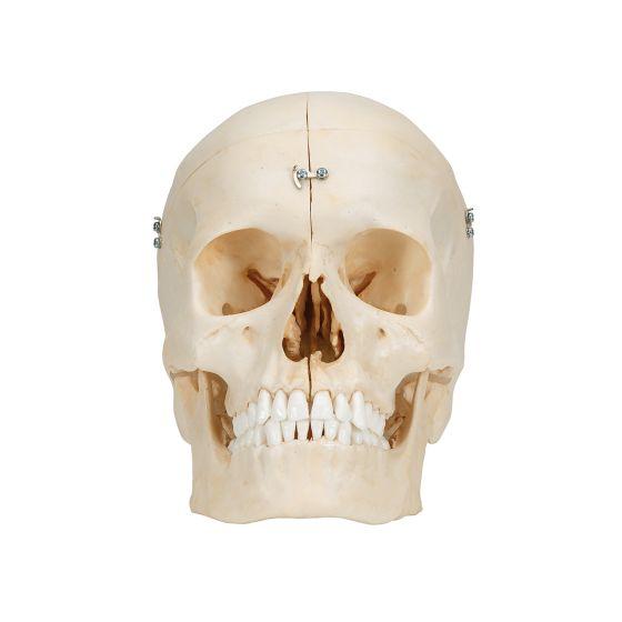 Crâne avec structures osseuses, 6 parties A281