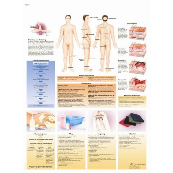Planche anatomique Escarres de décubitus VR2717L