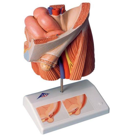 Modèle de hernie inguinale H13